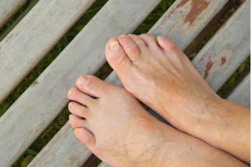 Hammertoe Causes and Treatment
